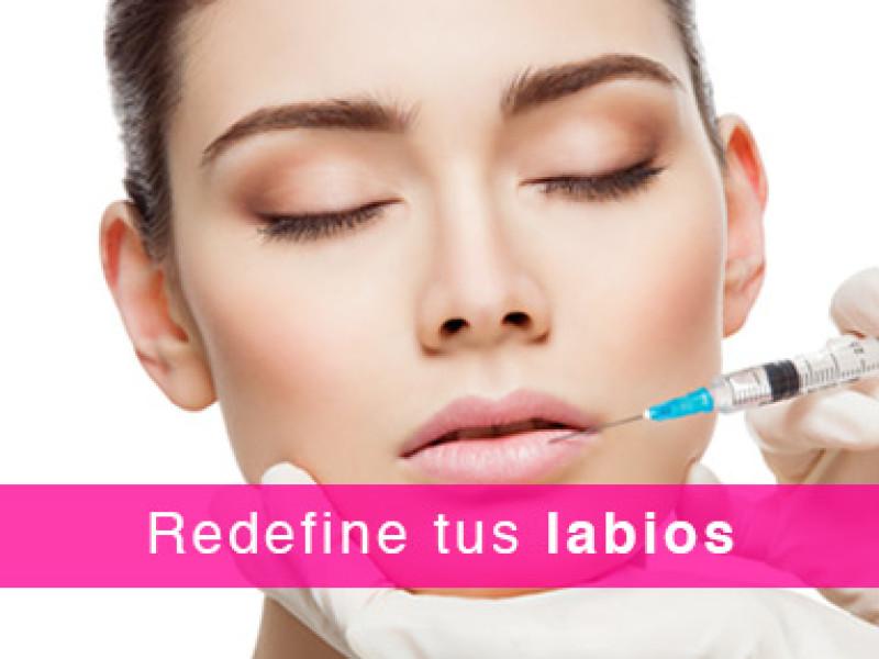 Redefine tus labios - Abogados Marín