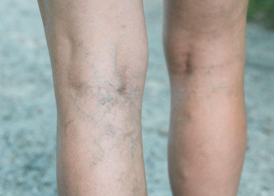 Tratamiento de Varices Lucena - ArtClínica