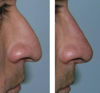 nariz-dorso-recto