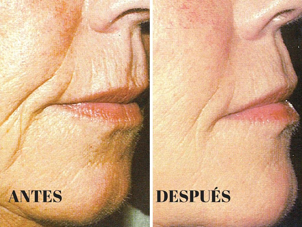 Eliminación de arrugas en Córdoba - ArtClínica