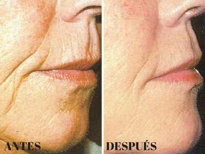 Rejuvenecimiento Facial Córdoba - Artclínica